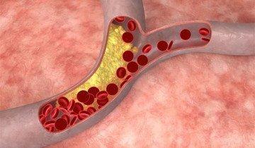 Изображение холестерина в сосудах, jivitezdorovo.ru