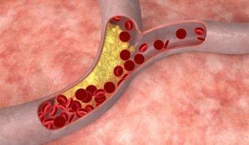 Изображение холестерина в крови, likar.info